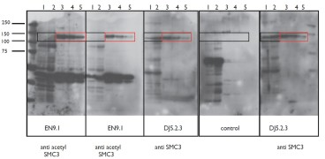 Figure. Immoblots using Anti-Acetyl SMC3 [EN9.1] and Anti-SMC3 [DJ5.2.3]. DJ5.2.3 immunoblots all forms of SMC3 while EN9.1 immunoblots only the Acetyl SMC3.