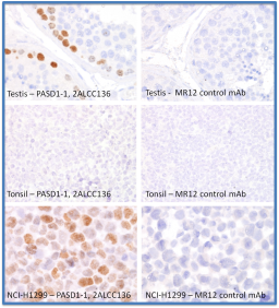 HC FFPE  Staining of formalin fixed and paraffin embedded human tissues with the PASD1-1 2ALCC136 antibody. Testis shows strong nuclear expression in a subpopulation of spermatogonia near the basal membrane in testicular tubules. Tonsil, like most normal human tissues shows no PASD1 labelling. Nuclear PASD1 protein was detectable in the lung cancer cell line NCI-H1299. The MR12 mouse monoclonal antibody was used as a negative control to demonstrate the specificity of PASD1 staining.