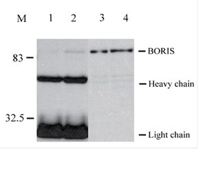 Immunoprecipitation assay using the anti-BORIS 20B11 antibody
