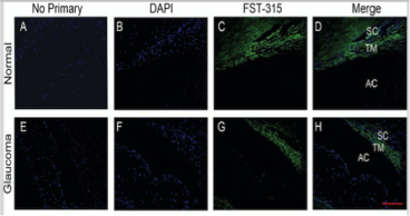 Clone H10 used to detect expression of FS315 in TM cells by IHC-P. FST 315 expression in NTM (C) and GTM (G) tissues. Source: Fitzgerald et al. 2012. Invest Ophthalmol Vis Sci. 53(11):7358-69. PMID: 23010638.