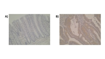 Figure. Photomicrographs of anti-Cytochrome P450 2J2 [Z9P1G9*A2]. is seen in normal colon (A) whilst in primary colorectal tumour tissue (B) moderate positive signal is detected. Cytoplasmic localisation of CYP2J2 is observed.