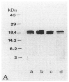 Western Blot of MBP Clone 2 used in a comparative study between anti-MBP clones and anti-EP. A: Lane a, anti-whole hMBP antibody; lane b, clone 14, lane c, clone 2; lane d, EP antiserum. All antibodies detected a major 18.5-kd band and a weaker 17.2-kd band in extracts of normal human brain homogenates. Source: Matsuo et al. 1997. Am J Pathol. 150(4):1253-66. PMID: 9094982.