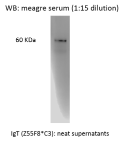 Western blot showing detection of IgT in meagre (Argyrosomus regius) serum using Anti-IgT [Z55F8*C3]. Antibody was used neat (supernatant).