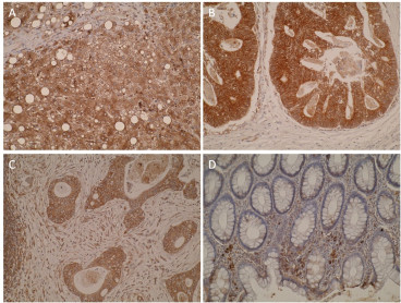 Immunohistochemistry was performed on formalin-fixed, paraffin-embedded tissue sections and showed positive cytoplasmic immunostaining in normal liver (A) which is expected as CYP7B1 is involved in bile acid synthesis. Primary colorectal (B) and metastatic colorectal tumors (C) showed stronger staining compared to normal colon mucosa (D).