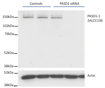 Western Blotting  PASD1 silencing with three independent PASD1 siRNAs was performed to validate the identity of the endogenous protein detected by Western Blotting in BT-20 breast cancer cells. Controls from left to right are untreated, mock siRNA, control siRNA. Experiments in other cell types have given similar results. There may be some variability in the m.wt. of PASD1, 100-150kDa.