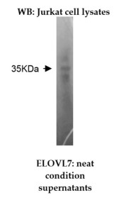 Western blotting was performed on Jurkat cell lysates using anti-ELOVL Fatty Acid Elongase 7 [Z26]. A 35kDa protein was detected.