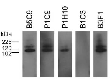 Western blot analysis of mAb probing against recombinant m5T4-pIg showing recognition of m5T4 by all mAbs except B1C3.