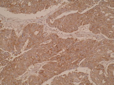 Photomicrograph of colon tissue IHC using N6-P2H5*G8