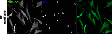 Confocal images of human fibroblasts (HF) stably expressing miniTurbo. HF were fixed in 4% PFA and immunofluorescently stained for miniTurbo with 5B11c3-3 monoclonal antibody. The nuclei were counter-stained with Hoechst.