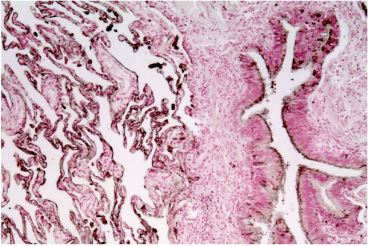 IHC of human lung: Using Anti-CEACAM6 [1H7-4B] (10 μg/ml) developed with DAB-staining procedure. Dark line indicated shows CEACAM6 expression.