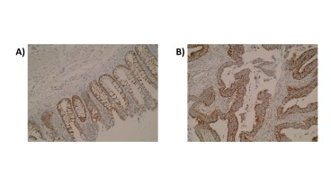 Immunohistochemistry was performed on normal colon (A) and primary colorectal tumour (B) tissue using anti-ELOVL3 [V61 P2B3*D10]. Cytoplasmic localisation of ELOVL3 was observed.
