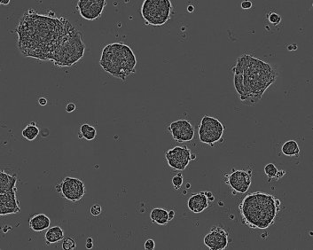 C75 Colorectal adenocarcinoma Cell Line. 96 days post plating. Image courtesy of the European Collection of Authenticated Cell Cultures (ECACC)