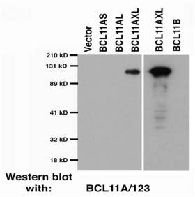 Western blotting characterisation of the  BCL123a  monoclonal antibody.