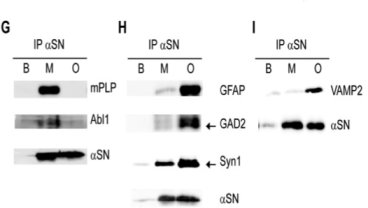 Clone PLPC1 used for the detection of PLP in brain tissue by Western Blot. Human (G-I) brain extracts were analyzed by immunoblotting using antibodies against antigens selected among the monomer and oligomer binding proteins. Source: Betzer et al. 2015. PLoS One. 10(2):e0116473. PMID: 25659148.