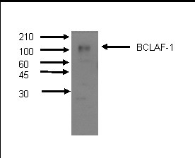 Western Blot using mAb M33-P5B11