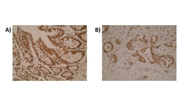 Figure. Immunohistochemistry was performed on normal colon mucosa (A) and primary colorectal tumour (B) using anti-anti-AARS antibody [M6-P2E5]. Cytoplasmic localisation of AARS is observed.