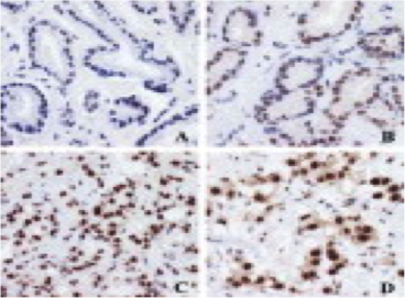 Clone PPG5/10 used to detect expression of ERβ1 in cancer tissue by IHC-P. Immunohistochemical localization of ER-β using PPG5/10 antibody. Source: Wong et al. 2005. J Pathol. 207(1):53-60. PMID: 15954165.