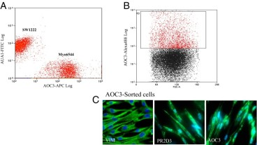 Adapted from Hsia LT, Ashley N, Ouaret D, Wang LM, Wilding J, Bodmer WF. Myofibroblasts are distinguished from activated skin fibroblasts by the expression of AOC3 and other associated markers. Proc Natl Acad Sci U S A. 2016 Apr 12;113(15):E2162-71. doi: 10.1073/pnas.1603534113. Epub 2016 Mar 28. PMID: 27036009; PMCID: PMC4839407. AOC3 is expressed in primary MFs but not in fibroblasts. (A) Immunofluorescent staining of CCD 18CO cells and foreskin fibroblast cells with AOC3 mAb (TK8-14) and PR2D3. (Magnification: 20×.) (B) Western blot using AOC3 mAb (TK8-14) detected a 150-kDa protein in CCD 18CO, myo2020, myo1998, and myo6544 cells but not in foreskin fibroblasts (F. Fibro) or skin fibroblasts (Skin Fibro). Tubulin was used as the loading control. (C) Flow cytometric analysis of primary cell cultures (myo6544 and myo1998) and CCD 18CO cells. Fibroblasts (foreskin fibroblasts and two sets of adult skin fibroblasts) and epithelial cells (SW1222 and LS174T) show that MFs are AOC3+, whereas fibroblasts and epithelial cells do not express AOC3. Isotype control is shown in red, and anti-AOC3 (TK8-14) is shown in green. (D) mRNA-expression levels of AOC3 and ACTA2 in MF and fibroblast cultures. AOC3 and ACTA2 mRNA expression in eight cell lines (four MF cultures and four fibroblast cultures) was measured by the Affymetrix Human Genome U133 Plus 2.0 microarray. The mRNA-expression levels along the y axis are actual ΔCt fluorescence intensities. (E) AOC3 functions as an SSAO enzyme in MFs. The enzyme activity of MFs was determined by SSAO-mediated H2O2 production. The siRNA for AOC3, the SSAO inhibitor semicarbazide (SEM) (1 mM), and the MAO-A inhibitor Clorgyline (1 mM) were added under serum-free conditions for 48 h. The enzyme activity in untreated CCD 18CO control cells was set to 100%. The P values are based on t tests for the difference between the treated and the serum-free control samples: **P < 0.001.