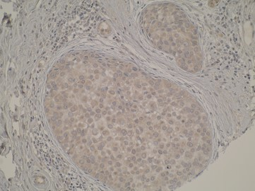 Immunohistochemical analysis was performed on formalin-fixed, paraffin embedded tissue sections. Here we can see cytoplasmic immunostaining in breast cancer tissues sections.