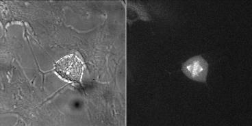 Cyclin B1-Venus Reporter Cell line [RPE1 cycB1-venus/+ KI clone 20G11] Metaphase, example 2