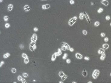 A2780ADR Cell Line. 24 hours post plating. Image courtesy of the European Collection of Authenticated Cell Cultures (ECACC)