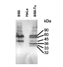 Adapted from Robinson et al. 2014. J Med Virol. 86(7):1267-77. PMID: 24415460. Figure. Reduced SDS–PAGE Western blot of untreated (8/60) and tunicamycin treated hRSV8/60 (8/60-Tu) stained with MAb 133 and MAb 21. A lane loaded with uninfected HeLa cell lysate (HeLa) was run as a negative control in each electrophoretogram.