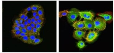 Representative immunofluorescence results showing the staining of HACAT (left image) and VB6 cells (right image) using anti-Integrin aVb6 [7k].