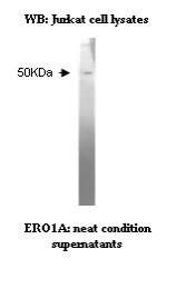 A western blot analysis using Anti-ERO1-Like clone V23P3C9*H2.