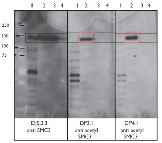 Figure. Immoblots using Anti-Acetyl SMC3 [DP3.1], Anti-Acetyl SMC3 [DP4.1] and Anti-SMC3 [DJ5.2.3]. DJ5.2.3 immunoblots all forms of SMC3 while DP3.1 and DP4.1 immunoblots only the Acetyl SMC3.