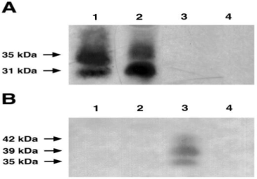 Western Blots showing binding of H10 to isoforms of FS315 in prostate tumor cell lines. B. FS315 proteins corresponding to 35, 39, and 42K molecular weight isoforms of FS could only be detected by the H10 Ab (Fig. 3B) in lanes containing hrFS315 (lane 3). Source: Praticò et al. 2004. Chem Phys Lipids. 128(1-2):165-71. PMID: 15037161.