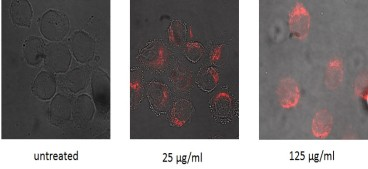 Microscopy images of HeLa S3 cells treated with MC51 at the indicated concentrations. Images show overlay of brightfield and confocal fluorescence (excitation 458nm; emission longpass 560nm filter) fields.