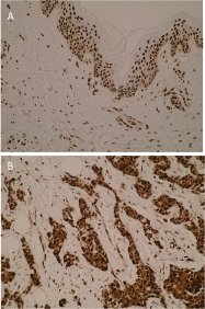 Immunohistochemistry was performed using anti-hnRNP-K (isoform1) [N10 P2D3*G2] on formalin-fixed, paraffin-embedded tissue sections.  Strong nuclear immunostaining was observed in normal skin (A). Nuclear and cytoplasmic immunostaining was observed in breast carcinoma (B). This is in agreement with existing literature as hnRNPK shows aberrant localisation in tumours.