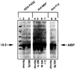 Clone 98/P12 used to detect MBP in brain tissue of normal and MS patients by Western Blot. ...Western Blot reacted with mAb P12. Lane 8, normal; lane 9, MS 75. Source: Yon et al. 1996. J Neuroimmunol. 65(1):55-9. PMID: 8642064.