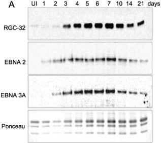 Adapted from Brocard et al. 2018. Nucleic Acids Res; 46(7):3707-3725. PMID: 29385536 