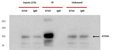 IP Conditions:  HEK293A cells. 1x15 cm dish. Cells lysed in  800 μl TNTE buffer (20 mM Tris pH 7.4, 150 mM NaCl, 5 mM EDTA and 0.4% Triton X-100) + protein inhibitors cocktail. Pi done using 10 μg of anti-ATG9A 14f2 8B1 antibody coupled to 50 μl of Protein A Dynabeads. o/n incubation of lysate with beads at 4°C. Elution with 50 μl SB 1x and 25 μl loaded for SDS-PAGE.  Western blot:  Blocking: 1x PBST with 5% non-fat dry milk Primary Ab dilution: Rabbit Anti ATG9A (STO215) 1/1000 in 1x PBST with 5% non-fat dry milk Secondary Ab dilution: HRP-Anti rabbit 1/5000 in 1x PBST with 5% non-fat dry milk