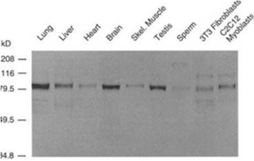 Western blot analysis using Anti-ADAM9