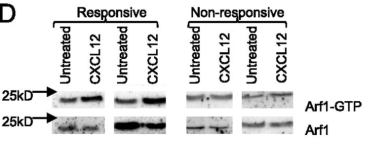 Effect of CXCL12 on Arf1 activity. CLL cells were incubated in the presence or absence of CXCL12 and assayed for Arf1 GTP loading. CXCL12 treatment increased Arf1-GTP loading in chemokine-responsive CLL samples (n = 6) but not in nonresponsive samples. Adapted from Derek et al, J Immunol August 1, 2013, 191 (3) 1496-1504
