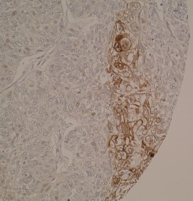 Immunohistochemical staining of human endometrial cancer tissue shows cytoplasmic positivity. IHC was performed on formalin-fixed, paraffin-embedded tissue sections.