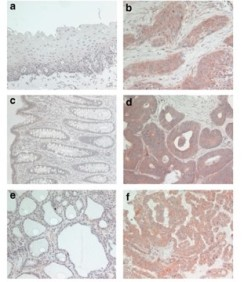 Adapted from Müller et al. 2010. Oncogene; 29(16):2393-403. PMID: 20154719. Figure. Expression of ASAP1 in human tumors. Normal esophageal, colorectal, and thyroid tissues (a, c, and e, respectively) and their corresponding tumors (b, d, and f, respectively) were immunostained using the 7B12 antibody and AEC (red color), followed by counterstaining with hematoxylin (blue color).