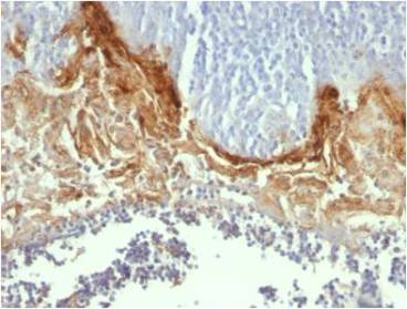 Formalin-fixed, paraffin-embedded human Tonsil stained with Involucrin Monoclonal Antibody (SY5)