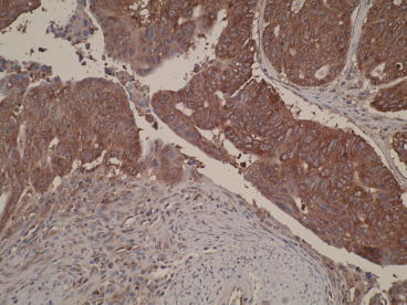 Immunohistochemistry of formalin-fixed, paraffin-embedded primary human colorectal cancer tissue using anti-DIAPH2 [V78P3C10*D3] showing cytoplasmic staining.