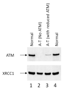 Figure 1. Western blot using ATM 11G12 monoclonal antibody. The four lanes (1-4) correspond to lysates prepared from lymphoblastoid cell lines (LCL) that we derived from either patient or control blood samples. In lanes 1 and 4, respectively, are lysates of two LCLs from two normal patients showing ATM. Lane 2 is lysate from a classical A-T patient with two truncating ATM mutations showing no ATM  protein expression; lane 3 is lysate from an A-T patient carrying a splicing mutation that results in expression of ~5% of normal ATM.