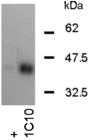 Western Blotting on 293T cell lysates (transfected) using anti-SCL [1C10]. + refers to serum from an immunized mouse.