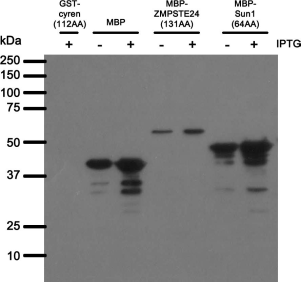 Western blot analysis of bacterially expressed MBP with BBMBP23.42 antibody. E.coli BL21 transformed with constructs indicated above were mock (-) or IPTG (+) induced for short time. After induction the whole-cell lysates were separated on SDS-PAGE gel, transferred to nitrocellulose membrane and blotted with BBMBP23.42 antibody. 