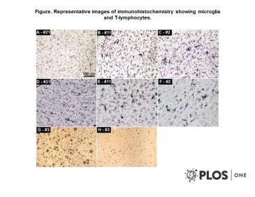 Adapted from Roher et al. 2013. PLoS One. 8(3):e59735. PMID: 23555764. Figure. Representative images of immunohistochemistry showing microglia and T-lymphocytes. A) CD68 staining of the microglia in the temporal cortex of NDC case #21. B) CD68 staining of the temporal cortex of NI-AD case #11. C) CD68 staining of the temporal cortex of Bapi-AD case #2. D) HLA-DR staining of microglia in the frontal cortex of NDC case #21. E) HLA-DR staining of the temporal cortex of NI-AD case #11. F) HLA-DR staining of the temporal cortex of Bapi-AD case #2. G) HLA-DR staining of the temporal cortex of Bapi-AD case #3. H) CD3 staining of T-lymphocytes in the temporal cortex of Bapi-AD case #3. Magnifications: A–F –200X and G, H –100X.