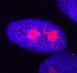 Primary human keratinocytes: NSun2 (red) DAPI (blue)