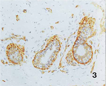 a6 chain showed positive staining of the basement membrane domain of basal cells and either weak positive or negative staining of the luminal epithelial cells (Fig. 3). (ANBAZHAGAN et al. JOURNAL OF PATHOLOGY, VOL. 176 227-232 (1995))