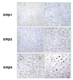 Clone 57/3 used to detect ERβ2 expression in normal human liver by IHC-P. Staining pattern of the ERß isoforms in human liver. In order to confirm the specificity of the ERß antibodies used in the study, we immunostained sections of human healthy liver, showing that ERß1 and ERß2 isoforms are not expressed, while specific nuclear ERß5 immunoreactivity is detected (magnification 20x and 40x). This pattern of ERß isoforms immunoreactivity is consistent with previous descriptions. Source: Ciucci et al. 2014. PLoS One. 9(7):e101623. PMID: 25000562.