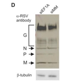 Adapted from Wei et al. 2014. PLoS One. 9(12):e114447. PMID: 2547905 Figure. Western blot analysis of SDS-PAGE separated proteins using an anti-RSV polyclonal antibody that detected RSV N, P and M. β-tubulin was used as a loading control.