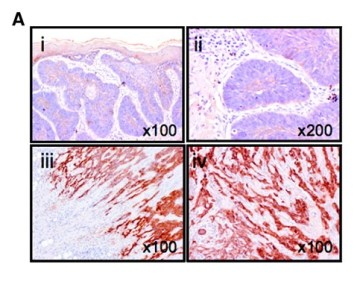 Adapted from Marsh et al. 2008. Cancer Res;68(9):3295-3036. PMID: 18451156 Figure. Immunohistochemistry showing representative avß6 expression in nodular BCC (i and ii) and morphoeic BCC (iii and iv)